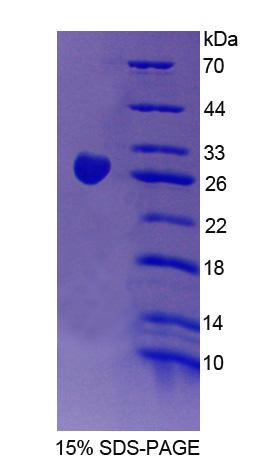 CHN2 / Chimerin 2 Protein - Recombinant Chimerin 2 By SDS-PAGE