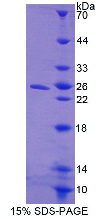 CISH / SOCS Protein - Recombinant Cytokine Inducible SH2 Containing Protein By SDS-PAGE