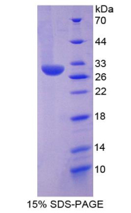 CMA1 / Mast Cell Chymase Protein - Recombinant  Chymase 1, Mast Cell By SDS-PAGE