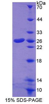 COT / CROT Protein - Recombinant Carnitine-O-Octanoyltransferase By SDS-PAGE