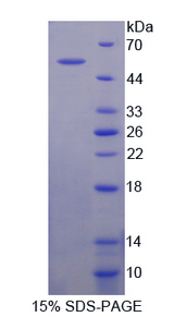 CRAT Protein - Recombinant  Carnitine Acetyltransferase By SDS-PAGE