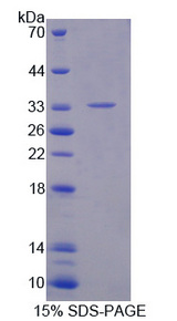 CRLF1 Protein - Recombinant Cytokine Receptor Like Factor 1 By SDS-PAGE