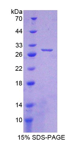 CRYBA1 Protein - Recombinant  Crystallin Beta A1 By SDS-PAGE