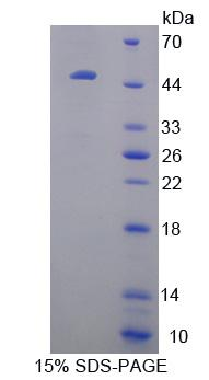 CRYBB1 Protein - Recombinant  Crystallin Beta B1 By SDS-PAGE