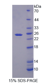Crygf / Gamma F Crystallin Protein - Recombinant Crystallin Gamma F By SDS-PAGE