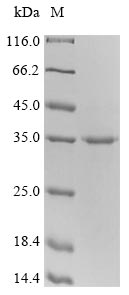 CTLA4 / CD152 Protein - (Tris-Glycine gel) Discontinuous SDS-PAGE (reduced) with 5% enrichment gel and 15% separation gel.