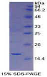 CUBN / Cubilin Protein - Recombinant Cubilin By SDS-PAGE