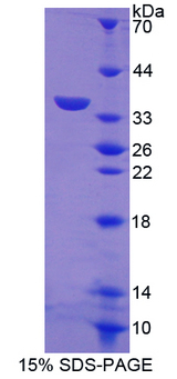 DEC-205 / CD205 / LY75 Protein - Recombinant  Lymphocyte Antigen 75 By SDS-PAGE