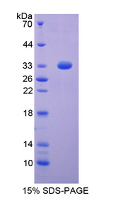 DFFA / ICAD / DFF45 Protein - Recombinant DNA Fragmentation Factor Subunit Alpha By SDS-PAGE