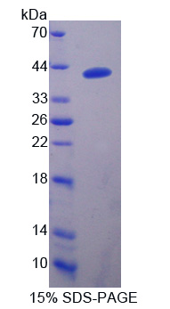 DNAJB1 / Hsp40 Protein - Recombinant  Heat Shock Protein 40 By SDS-PAGE