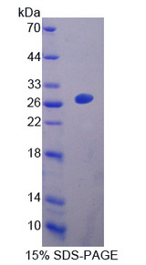 EBI3 / IL-27B Protein - Recombinant  Epstein Barr Virus Induced Protein 3 By SDS-PAGE