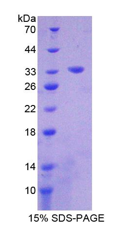 EPHB3 / EPH Receptor B3 Protein - Recombinant  Ephrin Type B Receptor 3 By SDS-PAGE