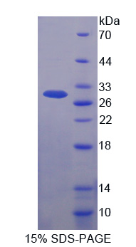 FBXW7 / FBW7 Protein - Recombinant  F-Box And WD Repeat Domain Containing Protein 7 By SDS-PAGE