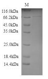 GALC / Galactocerebrosidase Protein - (Tris-Glycine gel) Discontinuous SDS-PAGE (reduced) with 5% enrichment gel and 15% separation gel.