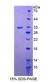 GIF / Intrinsic Factor Protein - Recombinant  Gastric Intrinsic Factor By SDS-PAGE