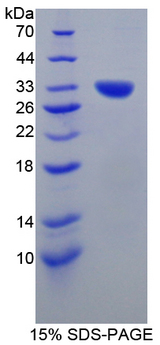 GLMN Protein - Recombinant  Glomulin By SDS-PAGE