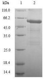 GLP1R / GLP-1 Receptor Protein - (Tris-Glycine gel) Discontinuous SDS-PAGE (reduced) with 5% enrichment gel and 15% separation gel.