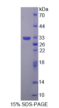 GLRX3 / Glutaredoxin 3 Protein - Recombinant  Glutaredoxin 3 By SDS-PAGE