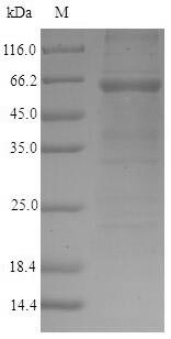 GOLM1 / GP73 / GOLPH2 Protein - (Tris-Glycine gel) Discontinuous SDS-PAGE (reduced) with 5% enrichment gel and 15% separation gel.
