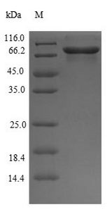 GPI Protein - (Tris-Glycine gel) Discontinuous SDS-PAGE (reduced) with 5% enrichment gel and 15% separation gel.