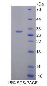 HAND1 Protein - Recombinant Heart And Neural Crest Derivatives Expressed Protein 1 By SDS-PAGE