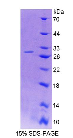 Recombinant Host Cell Factor C1 By SDS-PAGE