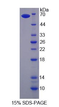 HCK Protein - Recombinant  Hemopoietic Cell Kinase By SDS-PAGE