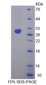HMGCS1 / HMG-CoA Synthase 1 Protein - Recombinant  Hydroxymethylglutaryl Coenzyme A Synthase By SDS-PAGE