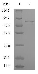 HNRNPA2B1 Protein - (Tris-Glycine gel) Discontinuous SDS-PAGE (reduced) with 5% enrichment gel and 15% separation gel.