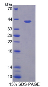 HNRPA1 / HnRNP A1 Protein - Recombinant Heterogeneous Nuclear Ribonucleoprotein A1 By SDS-PAGE