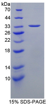 HSF4 Protein - Recombinant  Heat Shock Transcription Factor 4 By SDS-PAGE