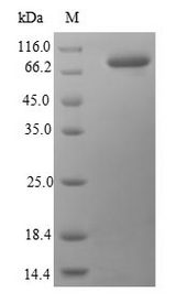 HSPA1B Protein - (Tris-Glycine gel) Discontinuous SDS-PAGE (reduced) with 5% enrichment gel and 15% separation gel.