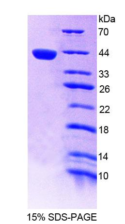 ICSBP / IRF8 Protein - Recombinant Interferon Regulatory Factor 8 By SDS-PAGE