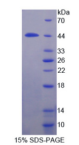 IL12RB1 / CD212 Protein - Recombinant  Interleukin 12 Receptor Beta 1 By SDS-PAGE
