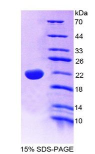 IL22 Protein - Recombinant  Interleukin 22 By SDS-PAGE