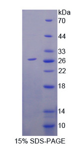 IL4R / CD124 Protein - Recombinant  Interleukin 4 Receptor By SDS-PAGE