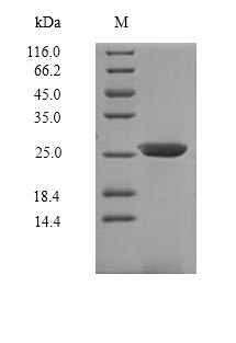 IL7R / CD127 Protein - (Tris-Glycine gel) Discontinuous SDS-PAGE (reduced) with 5% enrichment gel and 15% separation gel.