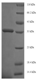 ITGB1 / Integrin Beta 1 / CD29 Protein - (Tris-Glycine gel) Discontinuous SDS-PAGE (reduced) with 5% enrichment gel and 15% separation gel.