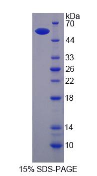 ITGB6 / Integrin Beta 6 Protein - Recombinant Integrin Beta 6 By SDS-PAGE
