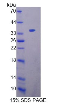 KEL / CD238 Protein - Recombinant Kell Protein By SDS-PAGE