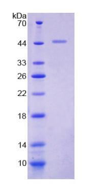 KISS1 / Kisspeptin / Metastin Protein - Recombinant  Kisspeptin 1 By SDS-PAGE