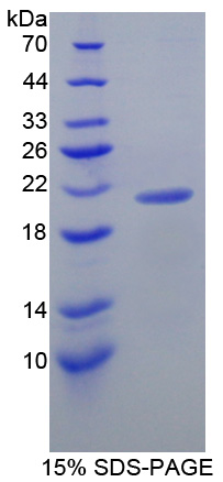 LCN8 Protein - Recombinant  Lipocalin 8 By SDS-PAGE