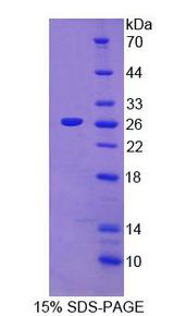 LGTN / EIF2D Protein - Recombinant Eukaryotic translation initiation factor 2D By SDS-PAGE