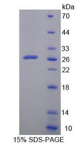LPXN / Leupaxin Protein - Recombinant Leupaxin By SDS-PAGE