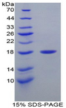 LYZ / Lysozyme Protein - Recombinant Lysozyme By SDS-PAGE