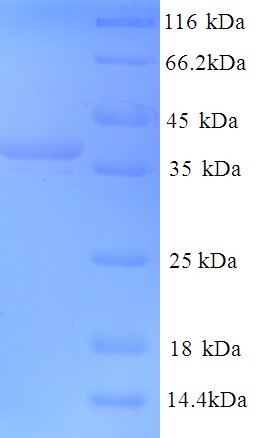 MAP2 Protein