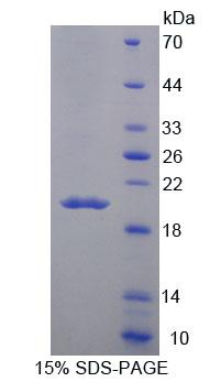 MARCO Protein - Recombinant Macrophage Receptor With Collagenous Structure By SDS-PAGE