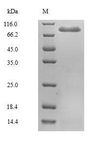 MASP2 / MASP-2 Protein - (Tris-Glycine gel) Discontinuous SDS-PAGE (reduced) with 5% enrichment gel and 15% separation gel.