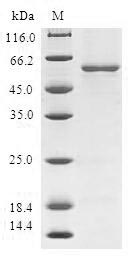MGLL / Monoacylglycerol Lipase Protein - (Tris-Glycine gel) Discontinuous SDS-PAGE (reduced) with 5% enrichment gel and 15% separation gel.