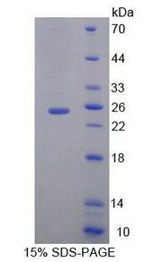 MOCS1 Protein - Recombinant Molybdenum Cofactor Synthesis 1 By SDS-PAGE